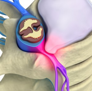 herniated disc, herniated disc surgery, herniated disc Houston, Houston, Sugarland, Woodlands, Katy, Spring, Sealy, Baytown, Beaumont