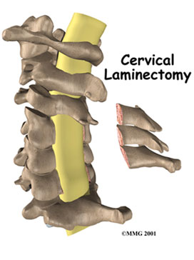 Cervical Laminectomy Surgery For Neck Pain Relief Spine