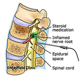 side effects steroid shot lower back