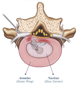A lumbar endoscopic discectomy relieves back pain by removing a portion of the disc and decompress nerves in the lumbar spine.