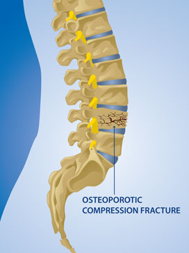 Osteoporosis And Osteopenia Symptoms And Treatment Spine