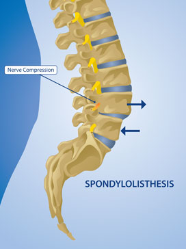Back pain spondylothesis treatment